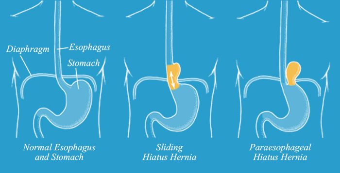 Paraesophageal Hernia | NHSA | Cypress | Houston